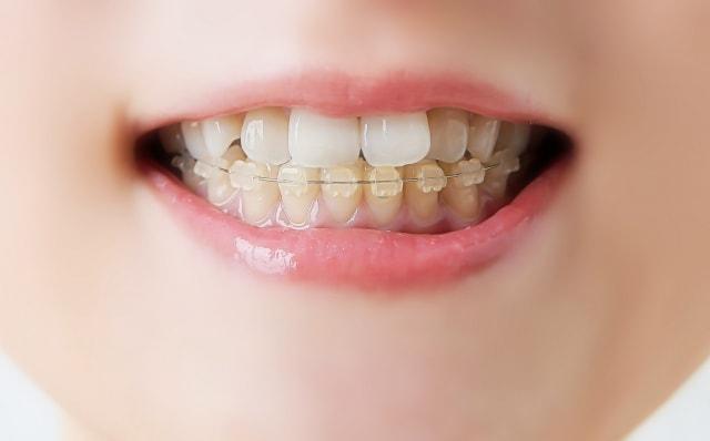 歯を矯正する女性